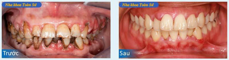 Hình ảnh điều trị răng sâu