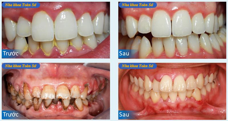 Hình ảnh trước và sau điều trị sâu răng