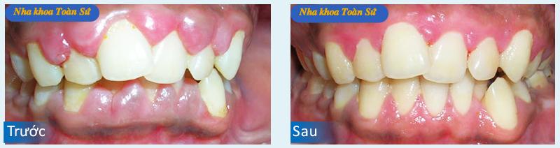 Hình ảnh trước và sau điều trị viêm chân răng