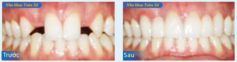 Hình điều trị viêm chân răng