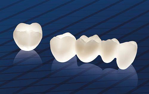 Bọc 6 răng sứ cercon thành công