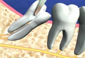 Điều trị răng khôn mọc lệch