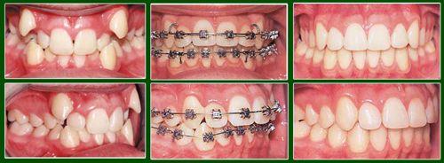Độ tuổi thích hợp để niềng răng