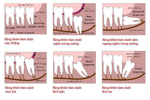 Nhổ răng