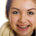 Niềng răng ở lứa tuổi nào là hợp lý