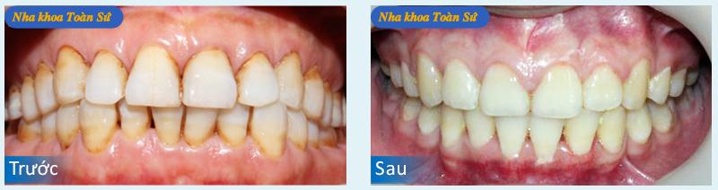 Hình ảnh trước và sau cạo vôi răng