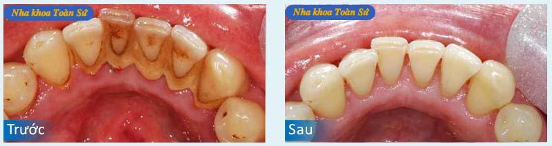 Hình trước và sau Cạo vôi răng