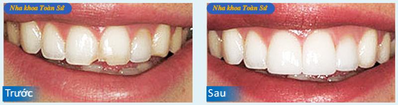 Hình trước và sau mặt dán sứ Veneer