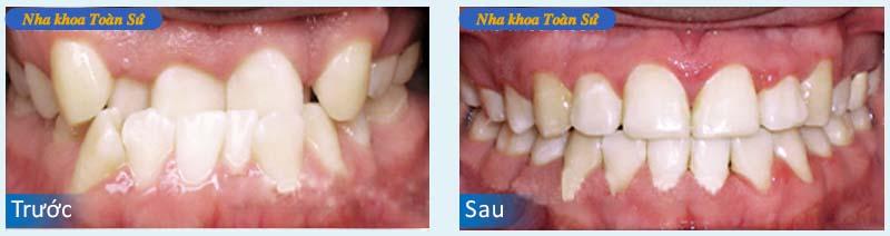 Hình trước và sau khi niềng răng invisalign