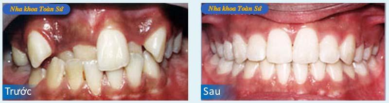 Hình niềng răng