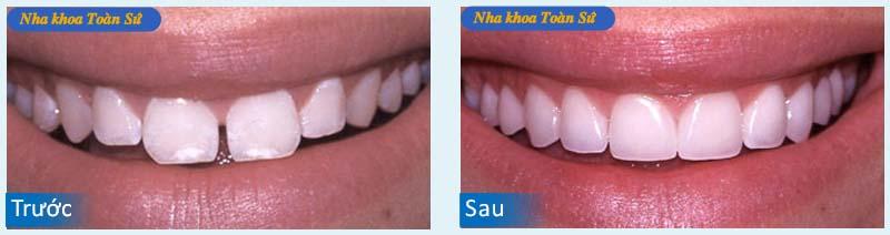 Hình trước và sau làm răng toàn sứ