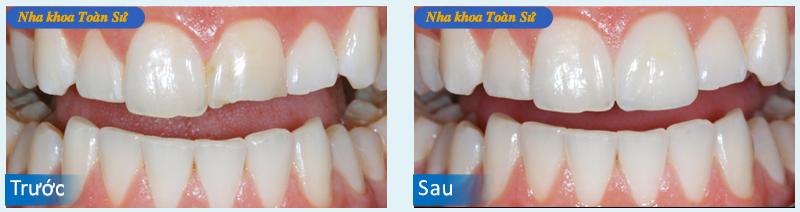 Hình ảnh răng không kim loại