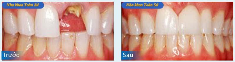 Hình trước và sau khi làm răng sứ Cercon