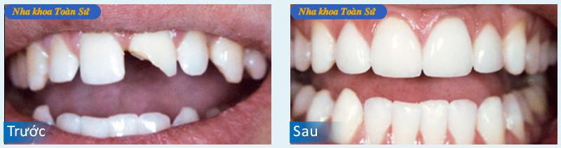Hình răng sứ không kim loại Emax