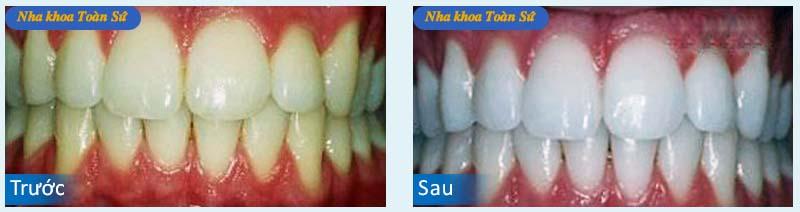 Hình trước và sau Tẩy trắng răng