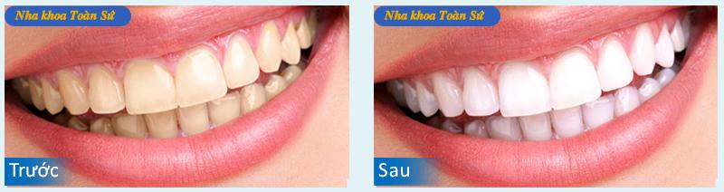 Hình ảnh trước và sau tẩy trắng răng