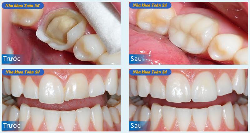 Hình ảnh trước và sau trám răng