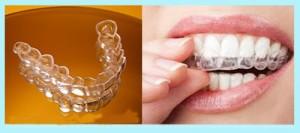 Hiệu quả của niềng răng không mắc cài