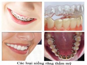 Niềng răng thẩm mỹ có tốt không
