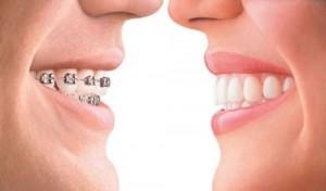 Quy trình niềng răng như thế nào