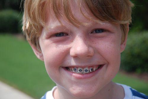 Thời gian niềng răng mất bao lâu