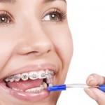 8 điều nên hỏi bác sĩ trước khi chỉnh nha
