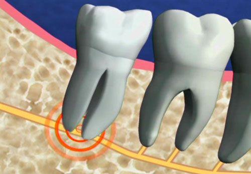 Biến chứng của nhổ răng khôn