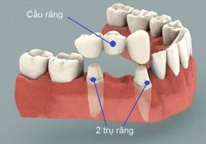 Cầu răng là gì ?