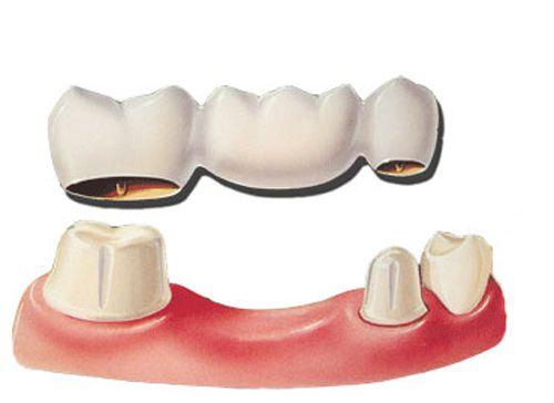Cầu răng sứ có tốt không ?