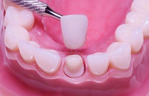 Cầu răng sứ sử dụng được bao lâu ?
