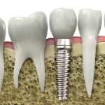 Cấy ghép implant thay thế nhiều răng đã mất