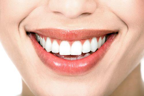 Có mấy loại cầu răng