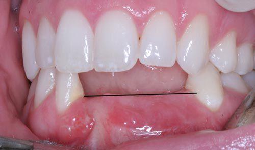 Đối tượng thích hợp để lắp cầu răng
