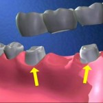 Làm cầu răng sứ có đau không ?