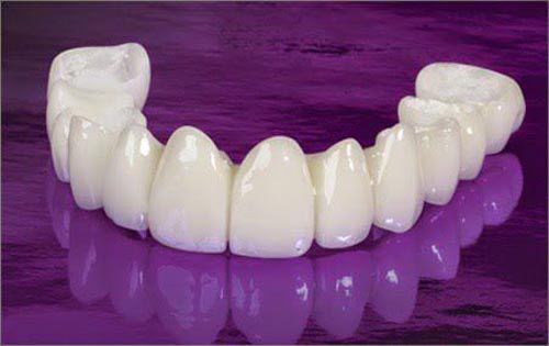 Làm cầu răng sứ - Phục hình răng mất 1 cách HOÀN HẢO!! 2