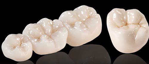 Mão răng và cầu răng là gì