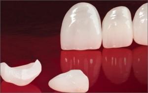 Mặt dán veneer sứ phục hình thẩm mỹ bảo tồn răng thật