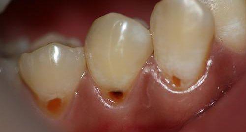 Nhổ răng khôn và những câu hỏi thường gặp