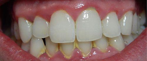 Nhổ răng sâu có đau không