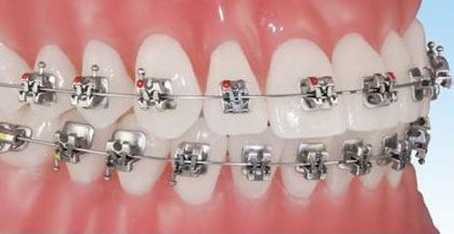 Niềng răng chỉnh nha với phương pháp gắn mắc cài