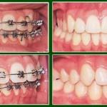 Niềng răng hô như thế nào