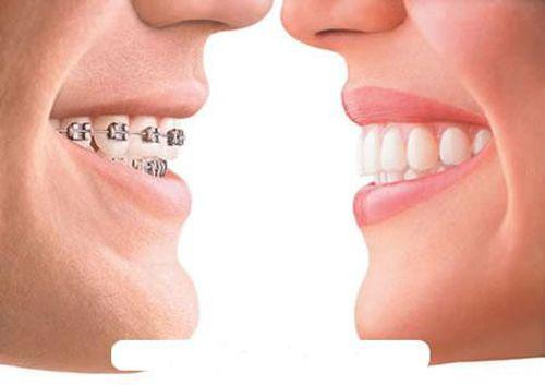 Niềng răng ở đâu tốt mà giá cả lại phải chăng