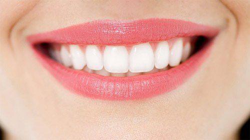 Niềng răng ở đâu tốt nhất thành phố Hồ Chí Minh