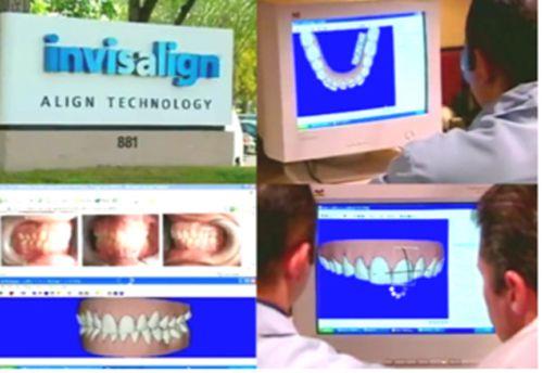 Niềng răng trong suốt đẹp an toàn
