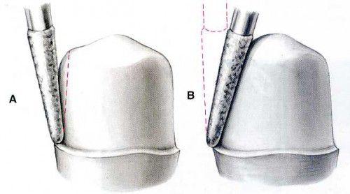Quy trình lắp cầu răng như thế nào ?