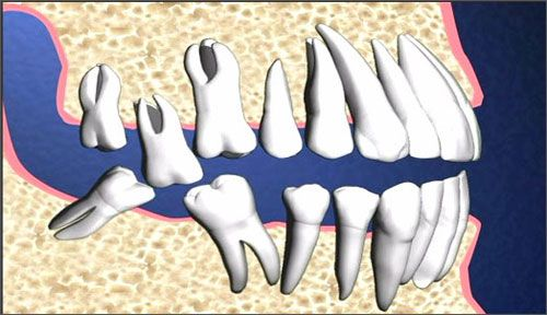 Răng khôn mọc lệch có nên nhổ không ?