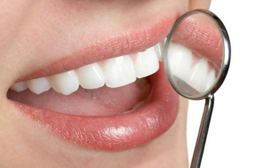 Trám răng thưa như thế nào