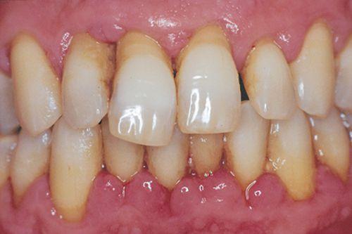 Bệnh nha chu không chỉ gây mất răng