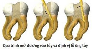 Bệnh sâu răng và cách khắc phục