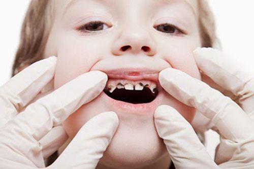 Các bệnh nha chu viêm ở trẻ em